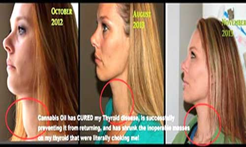 Woman Shrinks Inoperable Mass And Heals Her Thyroid Disease With